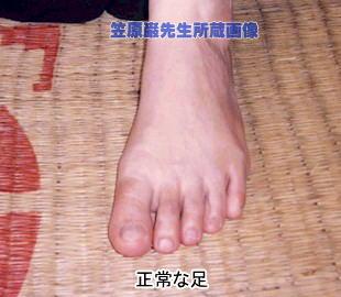 ランナーの浮き指・外反母趾・内反小趾対策アイテム