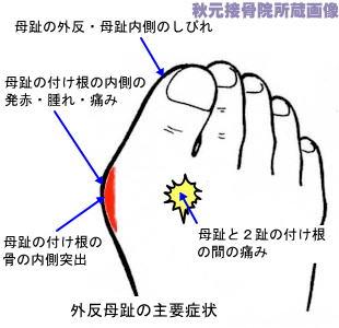 の しびれ 足 指