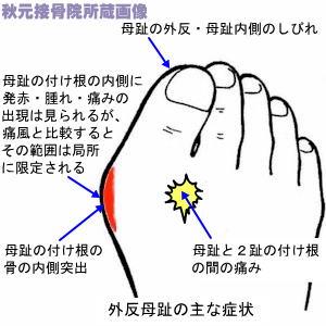 人差し指 足 間 親指 痛い の の と が 手のツボ図解15選!親指付け根(合谷)が痛いときは疲れのサイン?