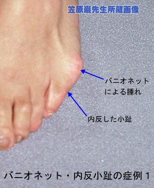 足 の 小指 の 付け根 痛い 足の小指の付け根が痛い!そんな方は内反小趾の可能性が!