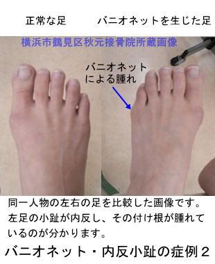 足 の 小指 の 付け根 が 痛い