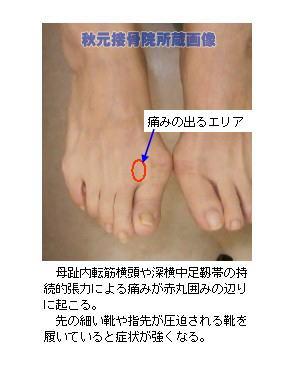 外反母趾~足の親指が曲がる・付け根が痛む・痺れる