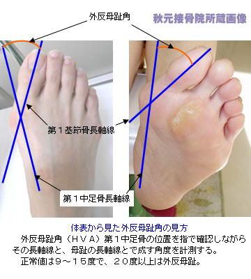 足指付け根の痛みの病気の見分け方